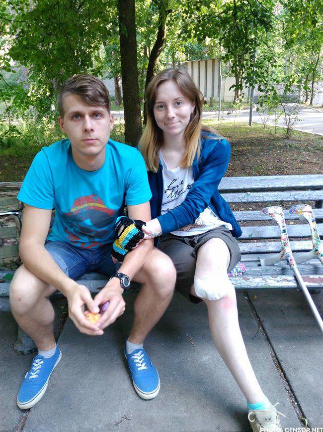 Frau prothese amputierte meerresuro: Amputierte